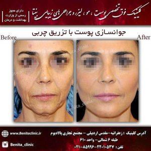 جوانسازی پوست با تزریق چربی