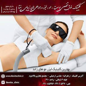 بهترین کلینیک لیزر موهای زائد تهران