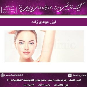 لیزر موهای زائد در تهران